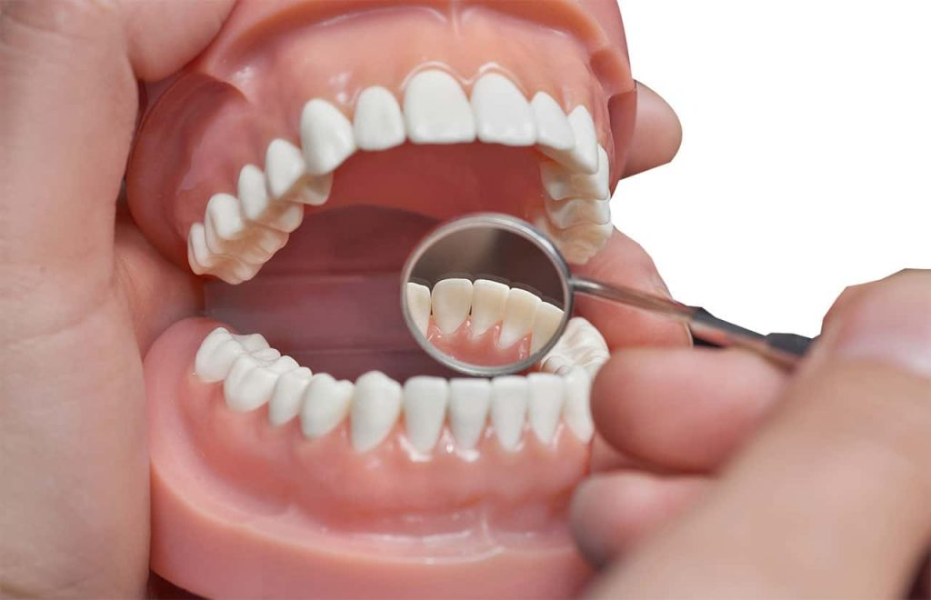 Denture Design Perth-Dental Prosthetist in Perth-What are Dentures made of