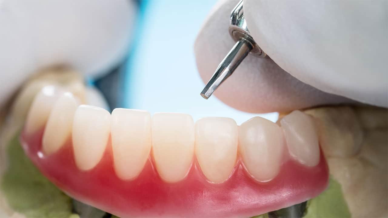 Partial Dentures in Perth