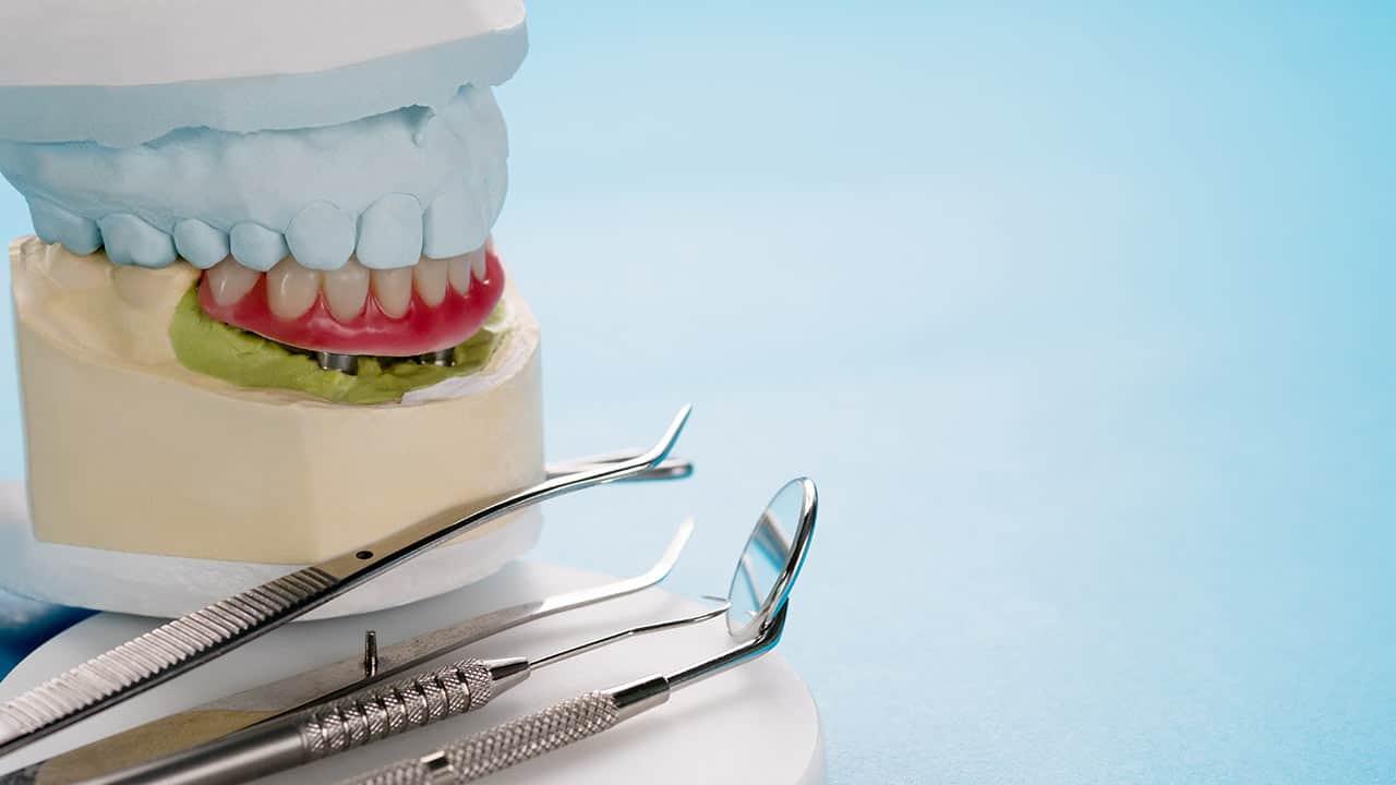 Denture Repair and Maintenance Perth