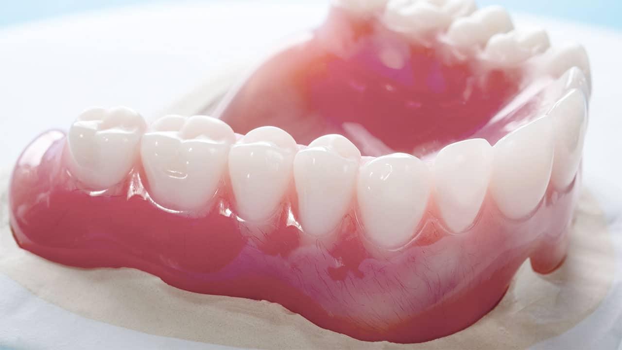 Full Dentures Perth