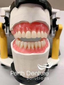 Denture image front