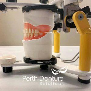 Denture image left side